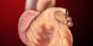 Caribbean Health Access Cardiology and Cardiac Services
