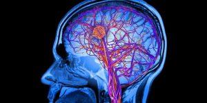 Caribbean Health Access Neurology and Neurosurgery