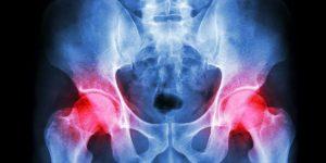 Caribbean Health Access Orthopaedics